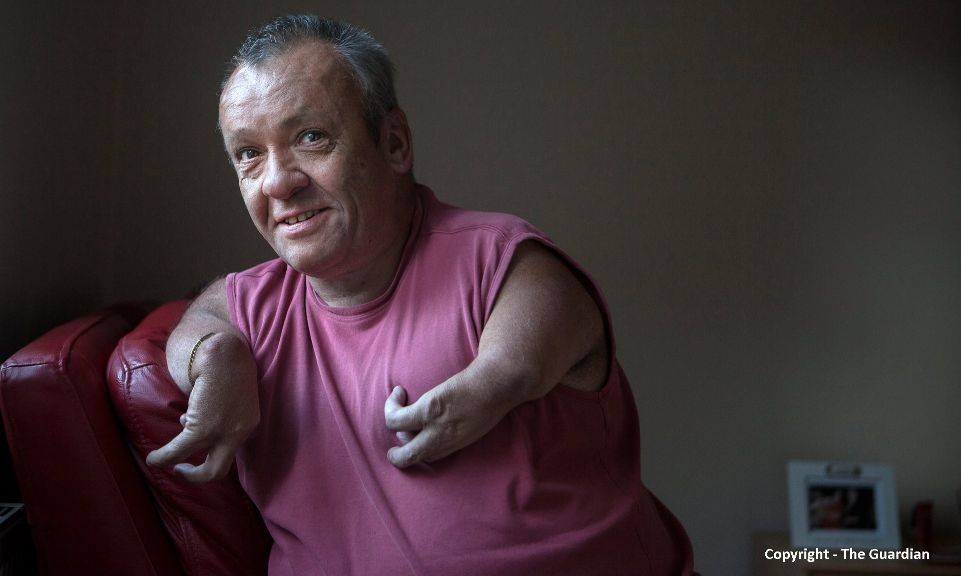 Phil Spanswick, whose disabilities were caused in the womb by the use of the thalidomide drug, had his PIP cut and his condition classed as 'genetic'. Photograph: Tom Pilston for the Guardian