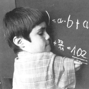 Thalidomide affected child with upper limb damage writing on a blackboard