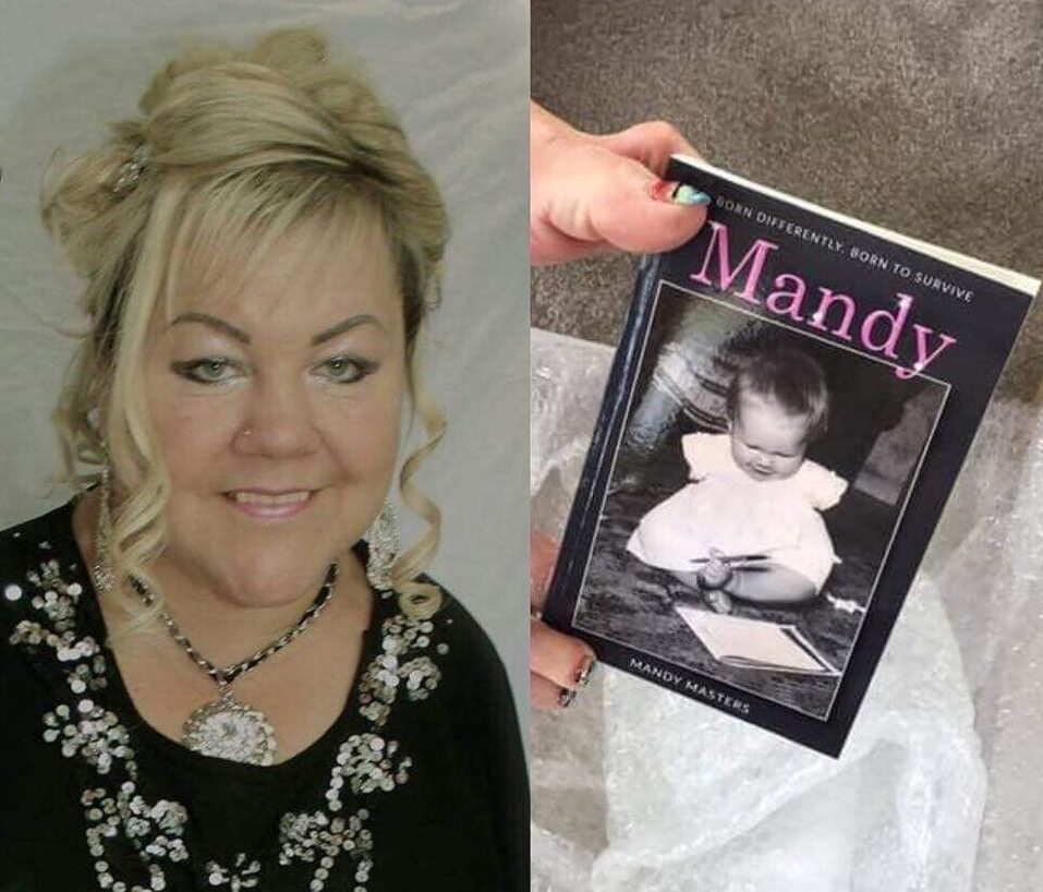 Mandy Masters is a thalidomide survivor and author of 'born differently, born to survive'