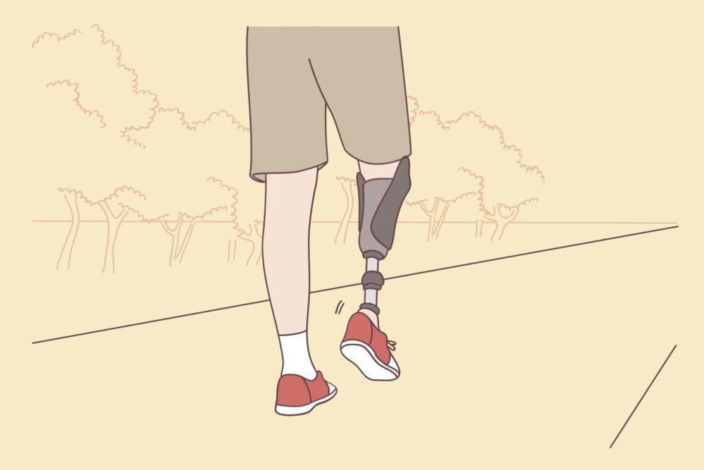 Man walking with prosthetic leg
